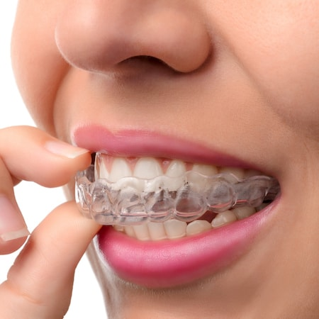 Dental Chicago - Zoomed image of Invisalign®