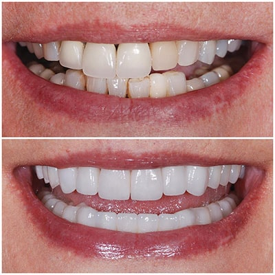 Chicago Restorative Dentist - The before and after of teeth whitening
