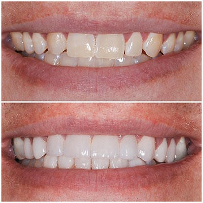 Chicago Restorative Dentist - A before and after of someone with a whiter smile