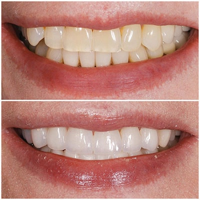 Chicago Restorative Dentist - A before and after shot of stained teeth