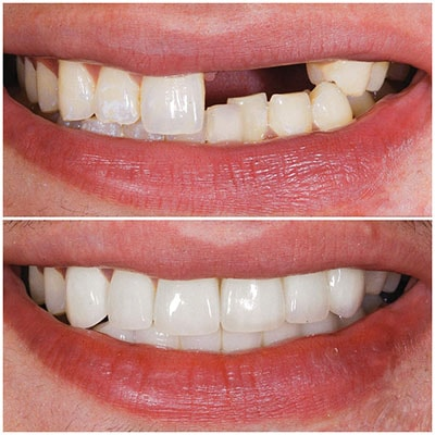 Chicago Restorative Dentist - A photo of the before and after of dental implants