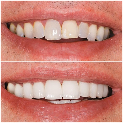 Chicago Restorative Dentist - Cleaner and whiter teeth before and after