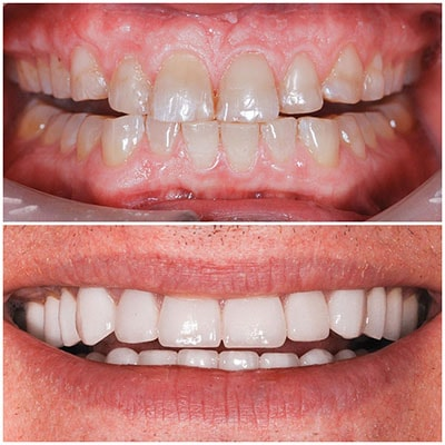 Chicago Restorative Dentist - Before and after of multiple treatments