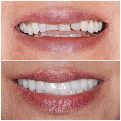 Chicago Restorative Dentist - Two images showing the before and after of mis-aligned teeth