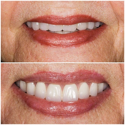 Chicago Restorative Dentist - An older lady's before and after